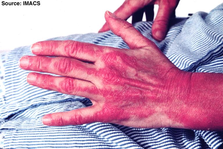File:Dermatomyositis16.jpg