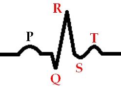 Заживший инфаркт миокарда