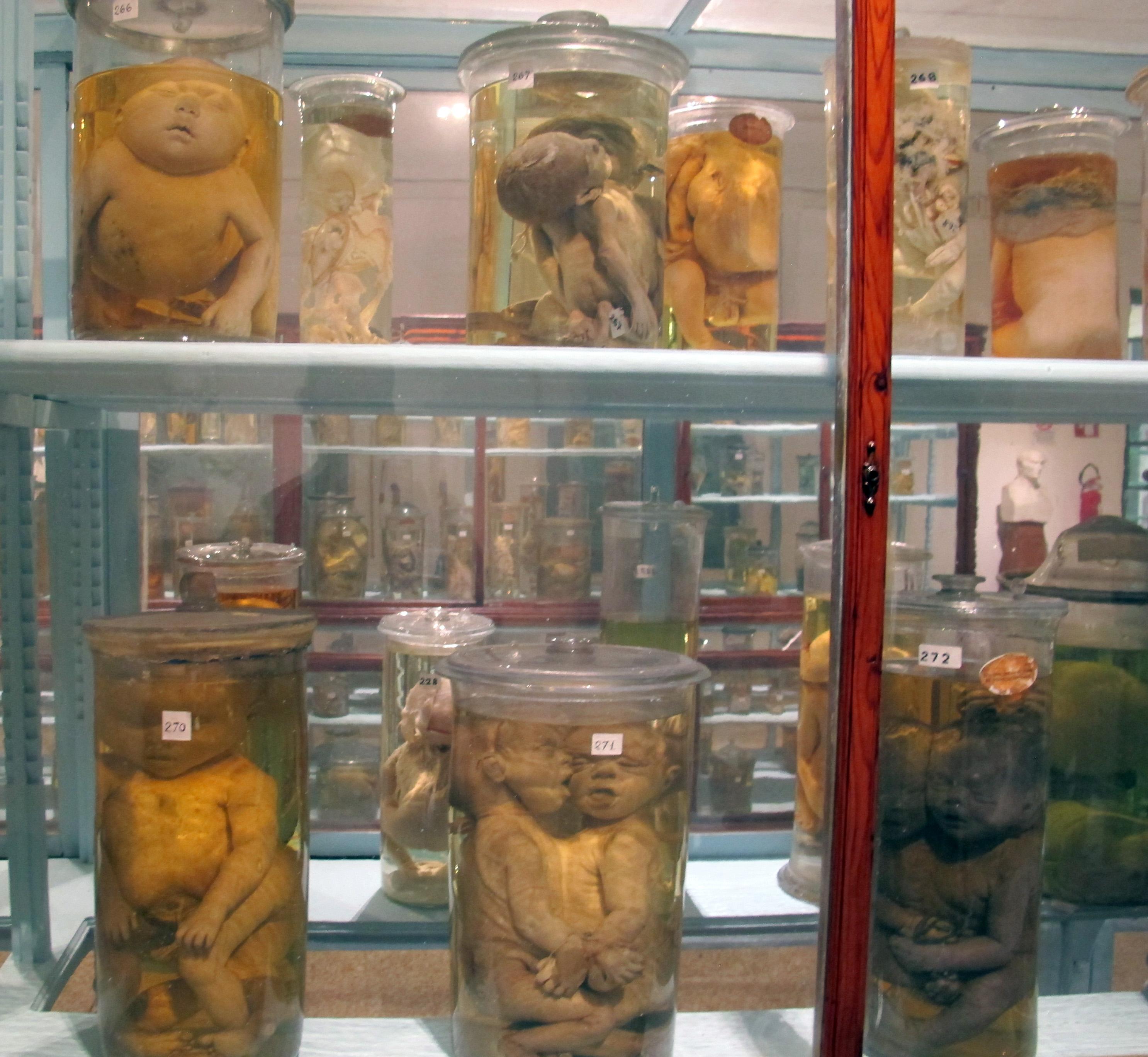 File:Istituto di anatomia patologica, museo, campioni 22 gemelli ...