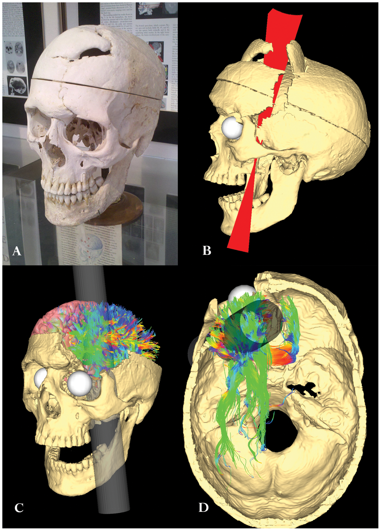 an analysis of phineas gage as a case study for a brain injury Brain, unusual case studies  neuroscience still haunted by phineas gage  deficits in traumatic brain injury this spread of damage to gage's white matter .