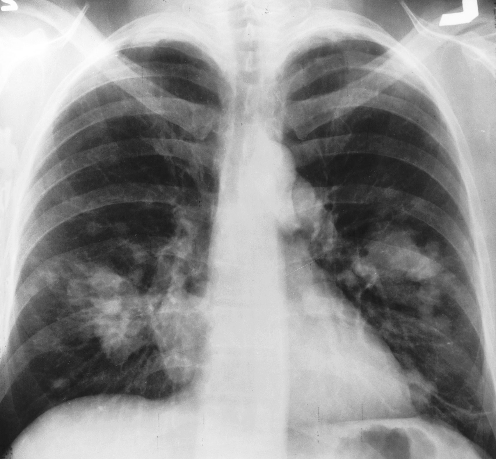 Description X-ray chest cancer.jpg