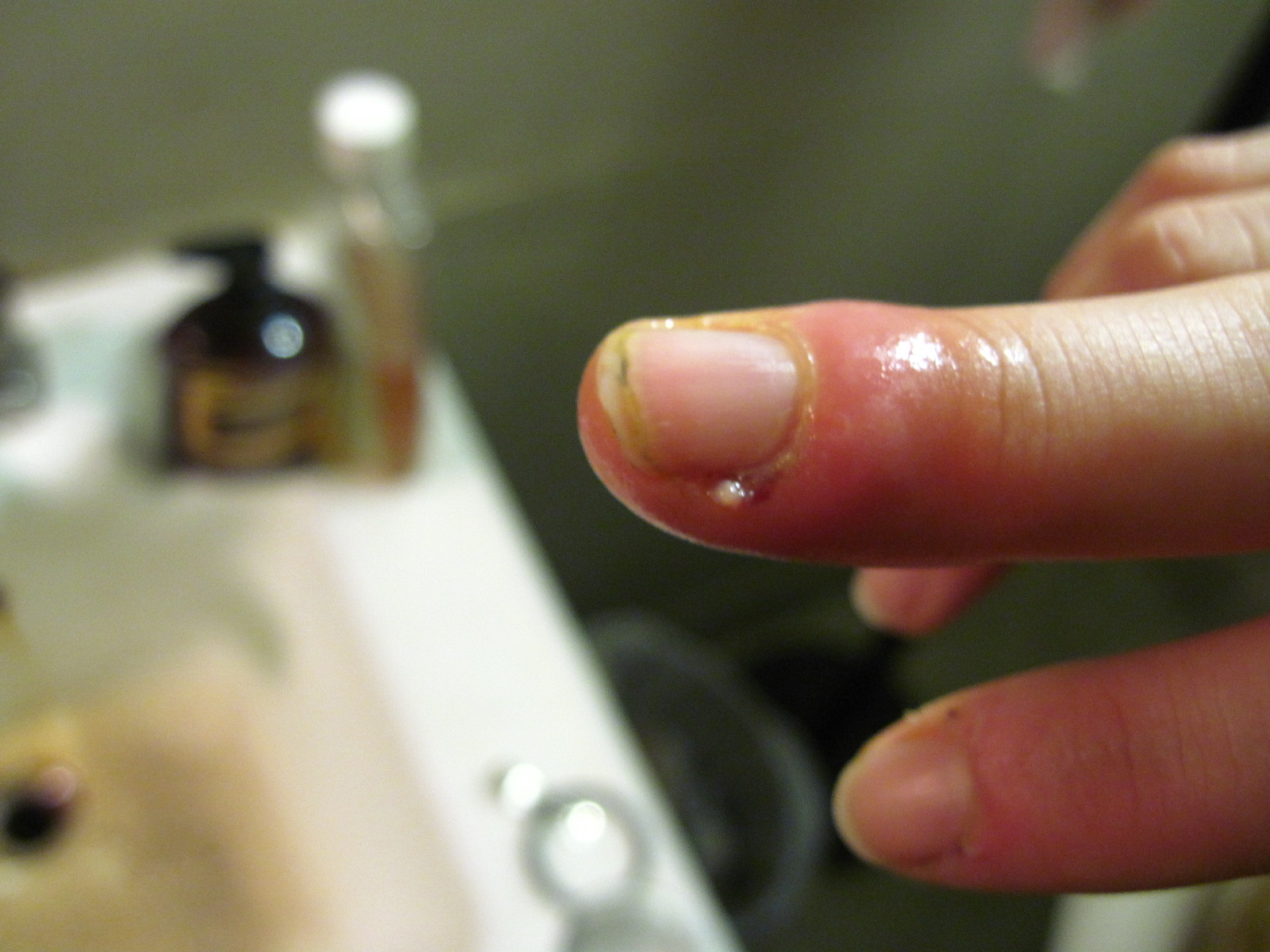 File:Bacterial infection in cuticle.jpg - Wikimedia Commons