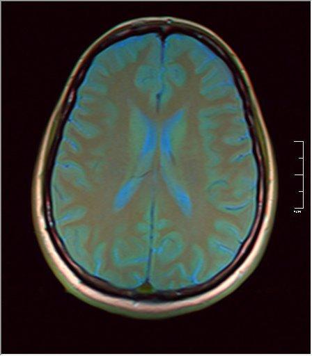 Brain MRI 0053 08.jpg