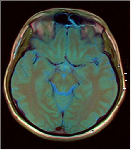 Brain MRI 0081 12.jpg