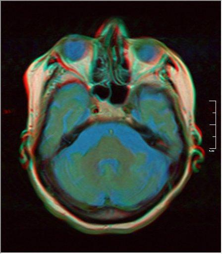 Brain MRI 0198 15.jpg