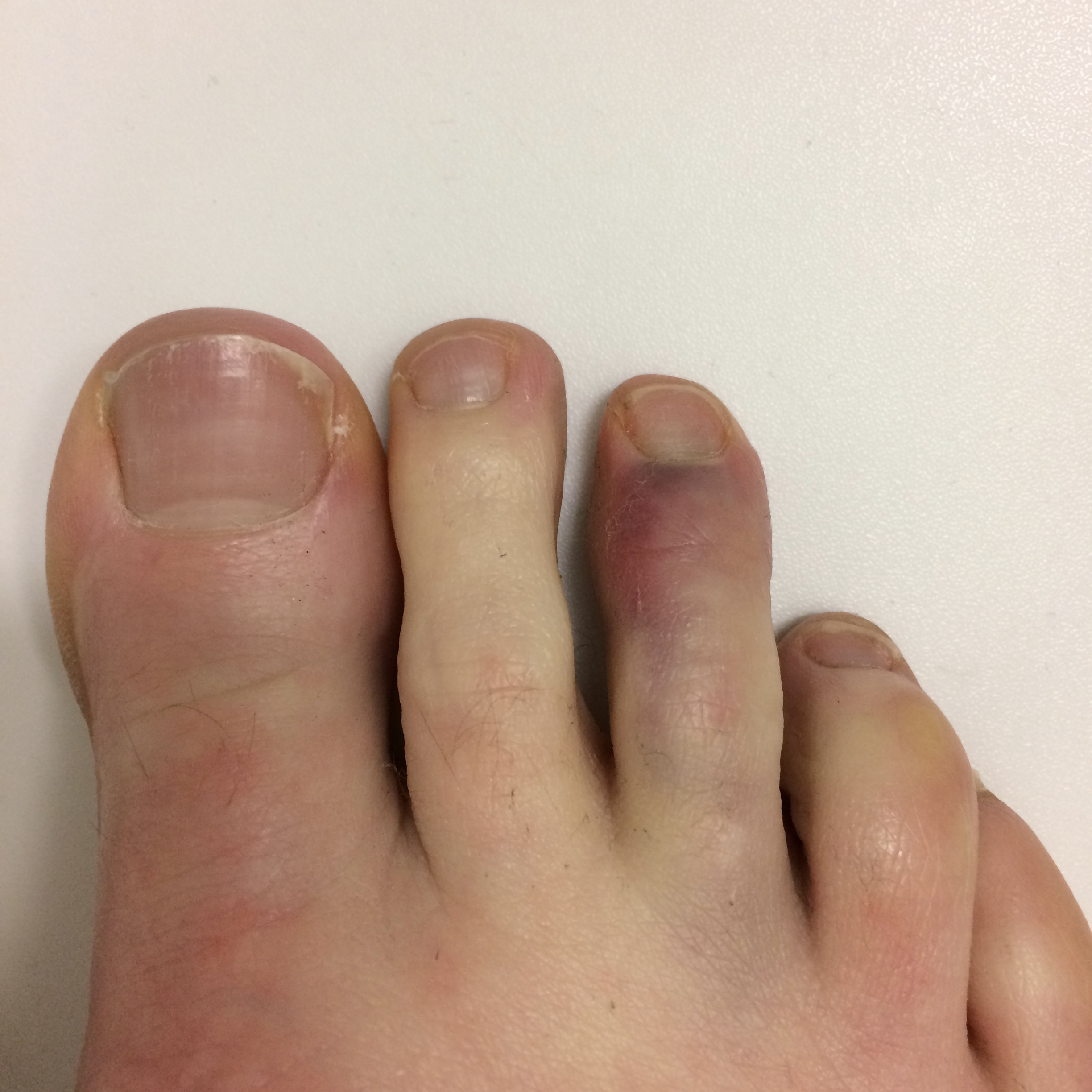 how to tell if toe is broken