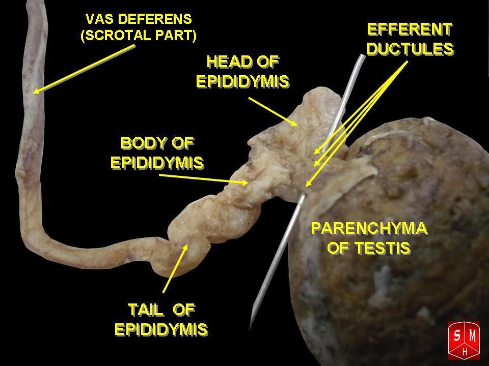 Fileepididymis 1g Wikimedia Commons