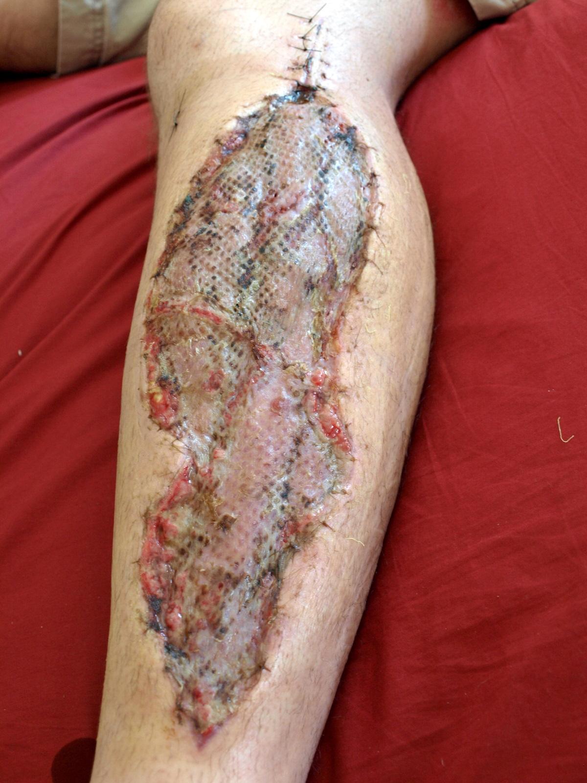 skin grafting scar