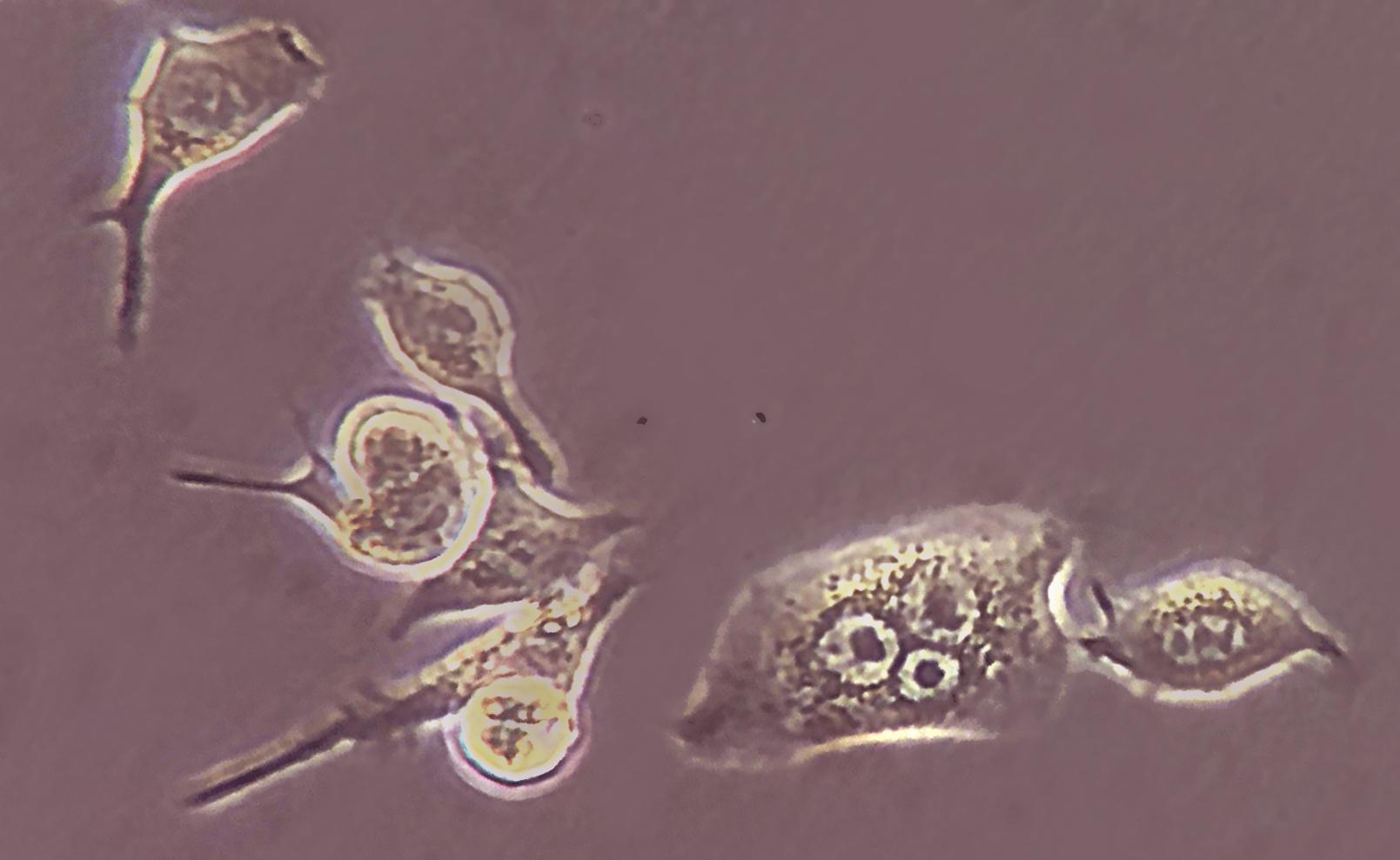 Neural cell.jpg