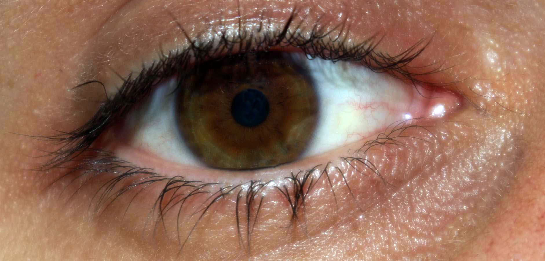 Limbal Ring Only Looks Black In Light