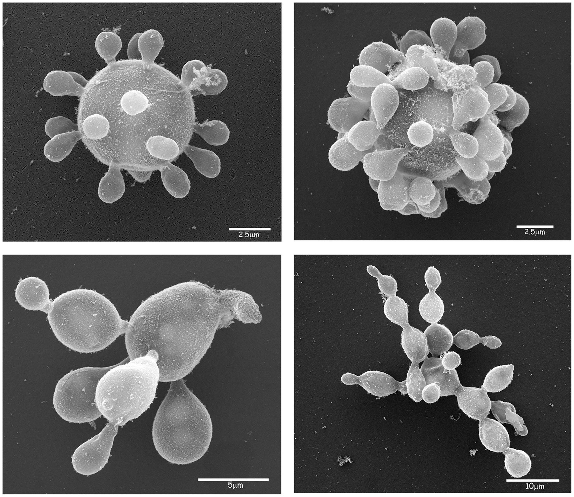 csajok parazitái helmintias és azok megelőzésével kapcsolatos tudomány