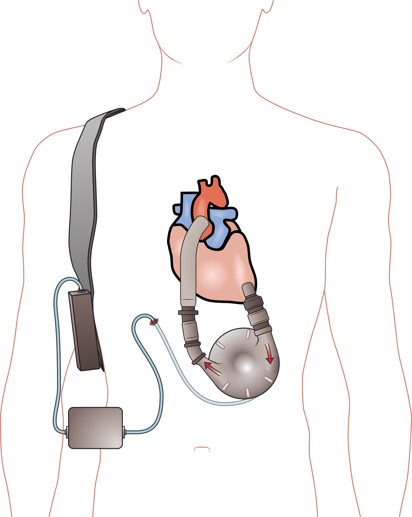 Ventricular Assist Device Wiki Ventricular Assist Device Png