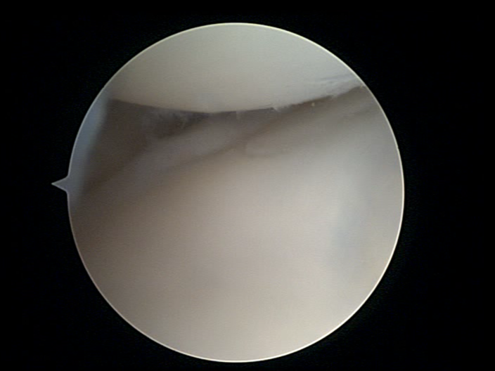 arthroscopic knee surgery is very lucrative in australia