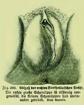 File:Die Frau als Hausärztin (1911) 288 Abszeß der rechten