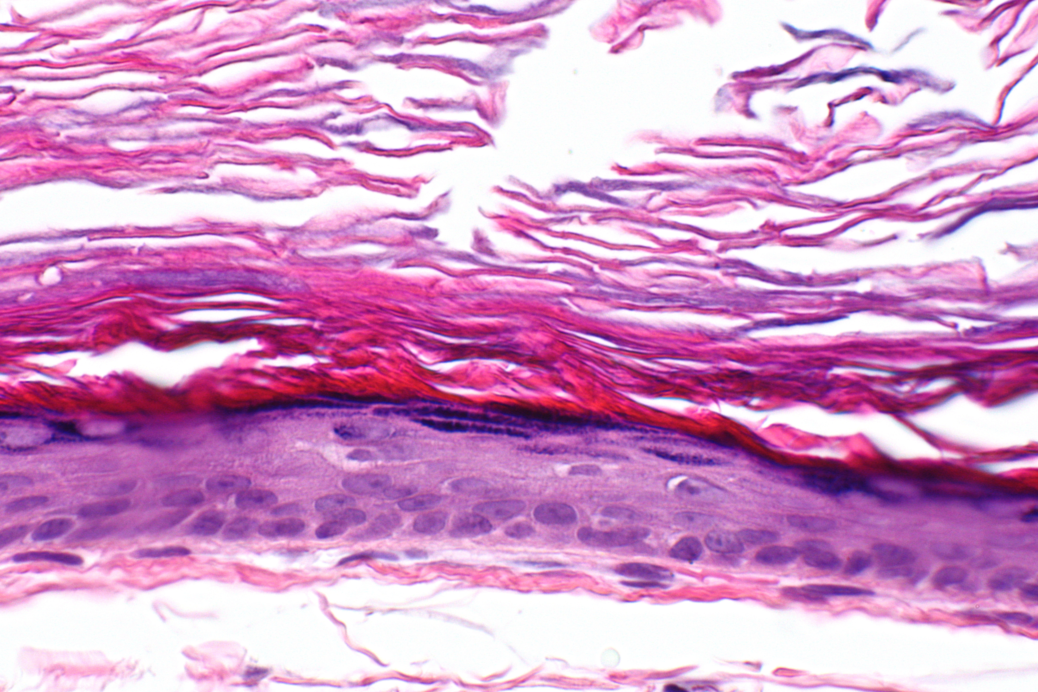 File Epidermal Inclusion Cyst -- Very High Mag Jpg