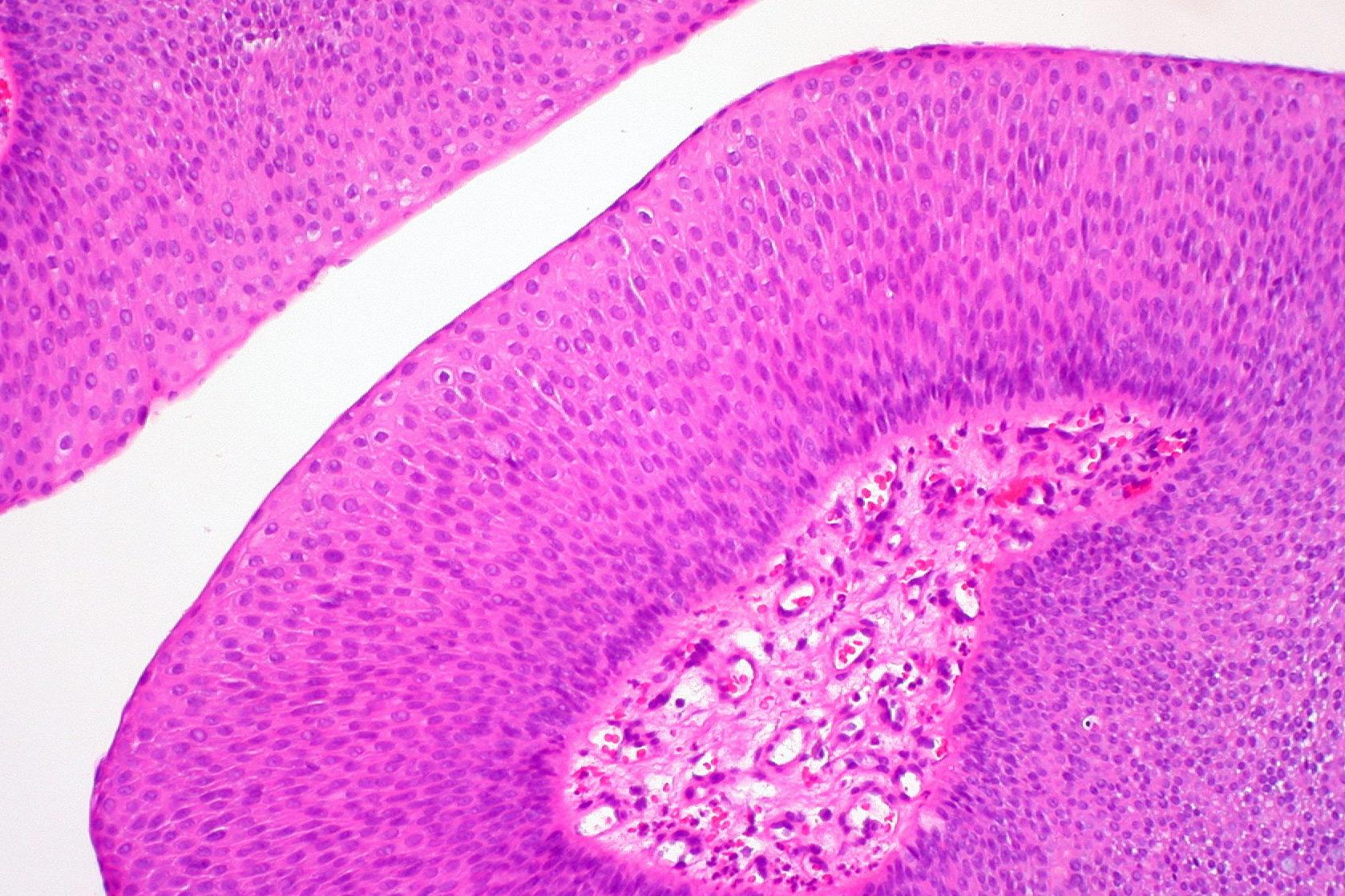 fungiform papilloma nasal