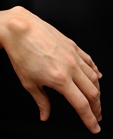 Ganglion Cyst Wrist Natural Treatment