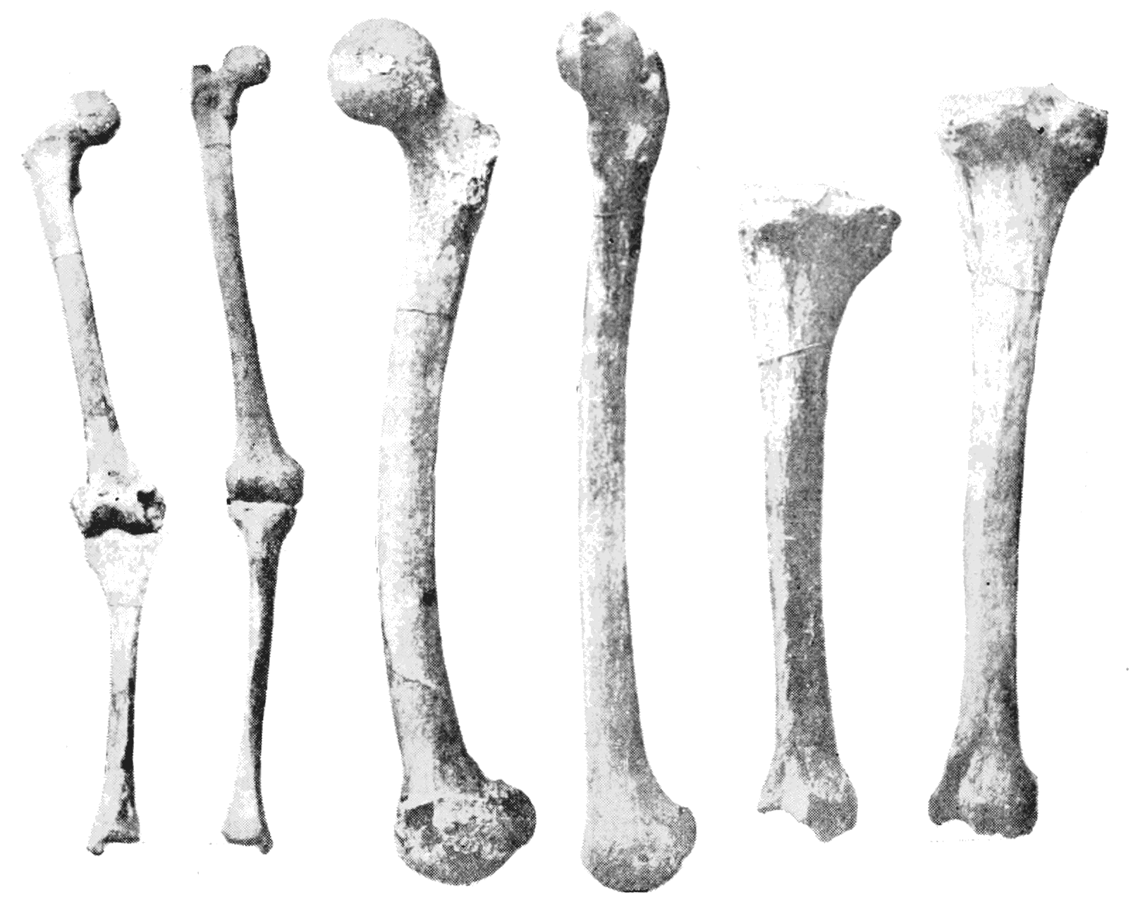 Filepsm V44 D639 Showing Leg Bonesg Wikimedia Commons