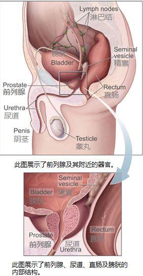 Prostatelead zh.jpg