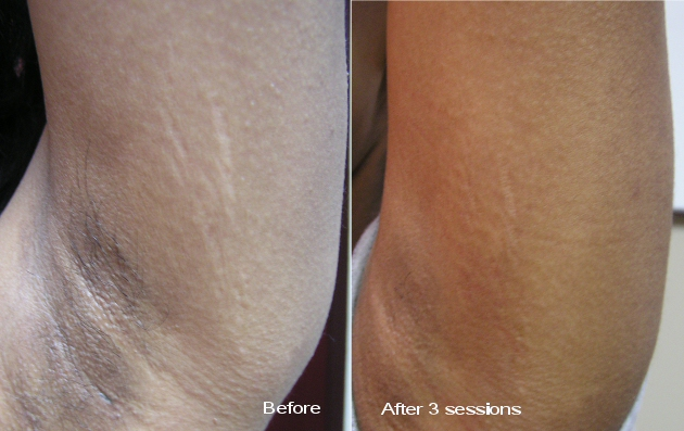 Laser Stretch Mark Removal Rhode Island