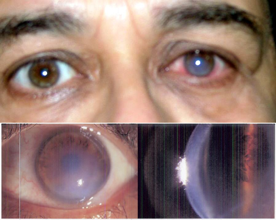 Операции при кератоконусе глаз