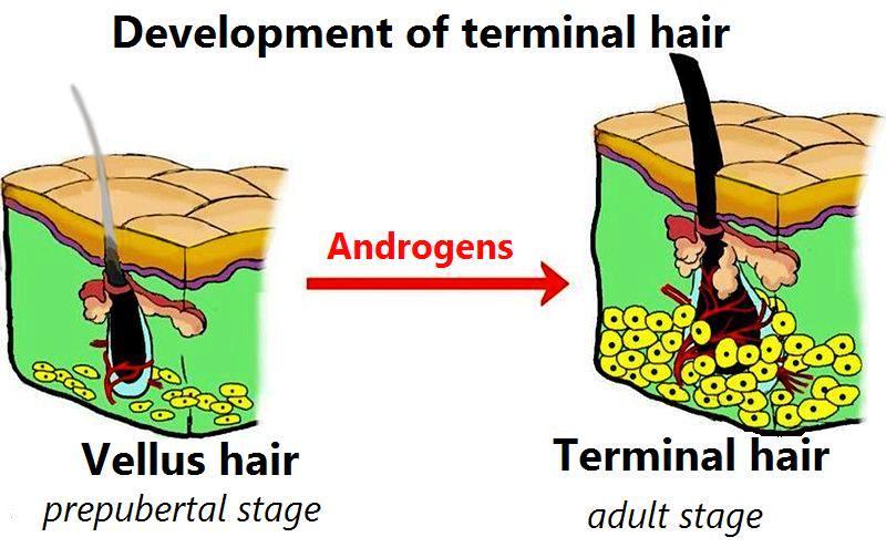 Terminal Hair Wikipedia