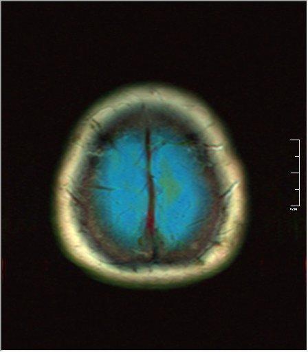 Brain MRI 0133 00.jpg