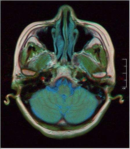Brain MRI 0213 17.jpg