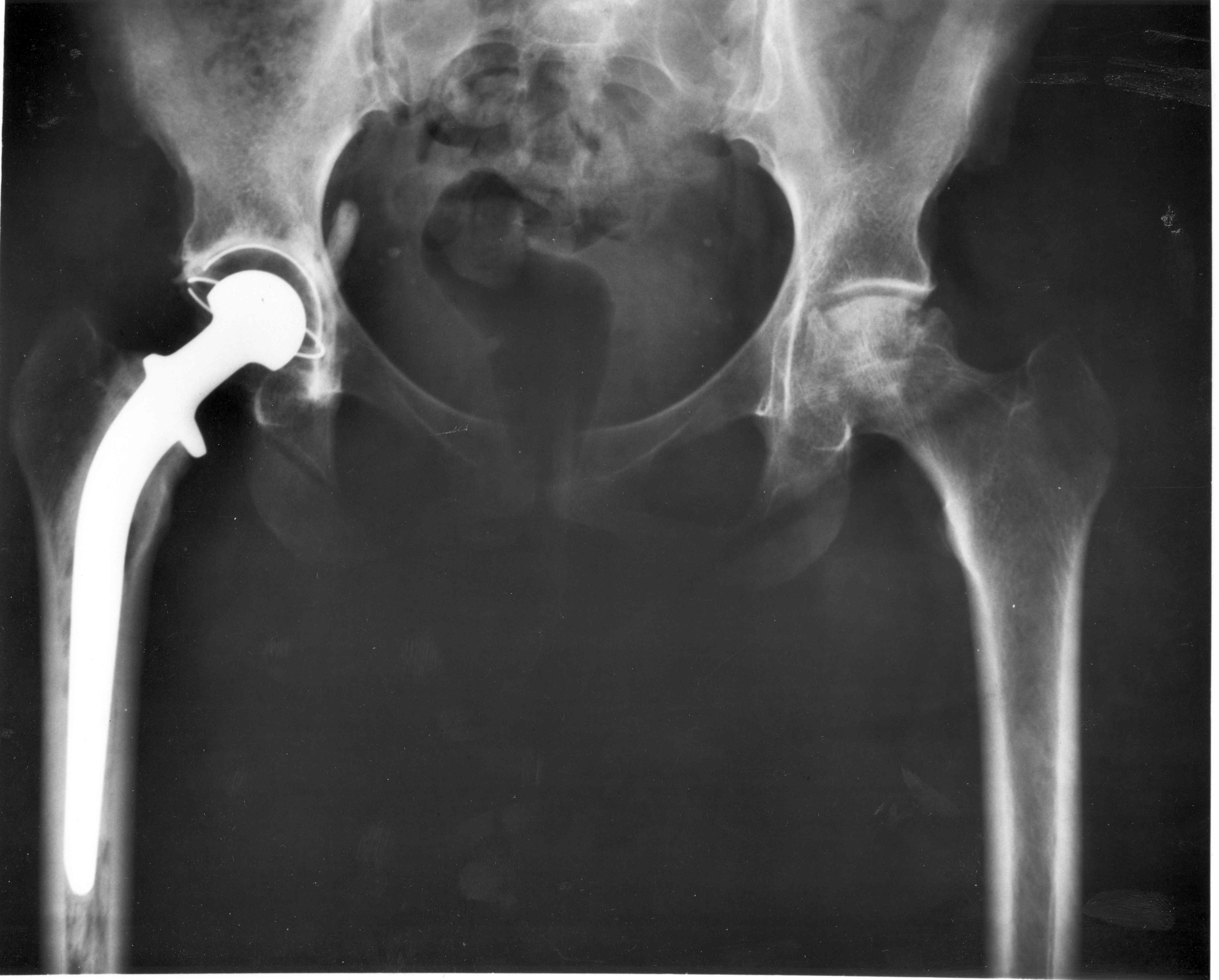 hip replacement Hip replacement may be an option if your hip pain interferes with daily activities and conservative treatments haven't helped.
