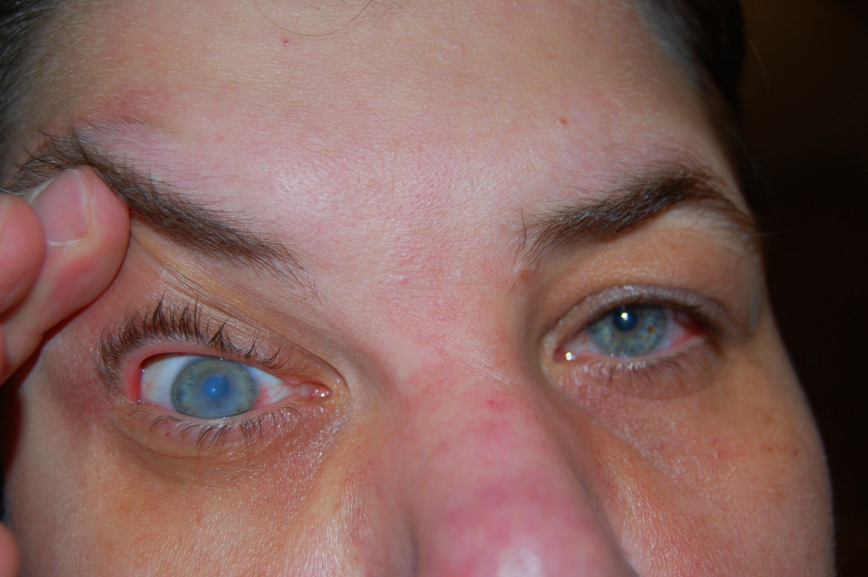Keratoconus Eye Disease