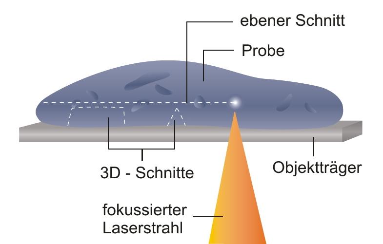 File:Prinzip Lasermikrotom.jpg