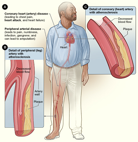 https://upload.wikimedia.org/wikipedia/commons/2/2f/Smoking_and_Atherosclerosis.jpg