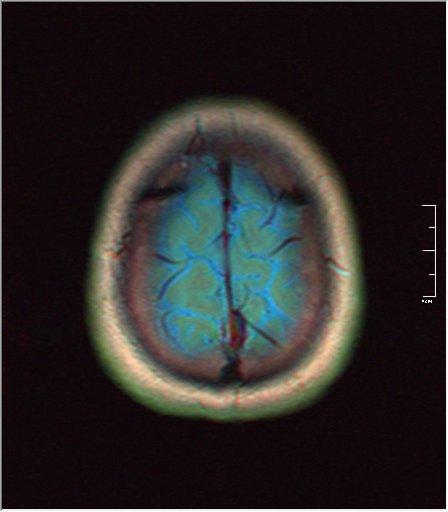 Brain MRI 0249 00.jpg