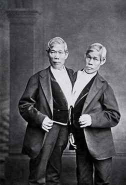 60-ish year old conjoined twin brothers wearing a suit and facing the camera