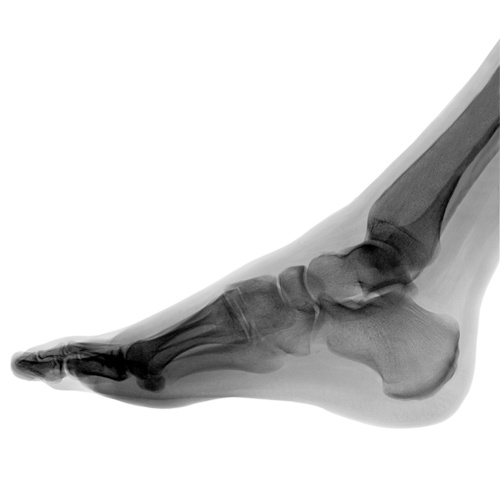 reconstructive foot surgery san francisco