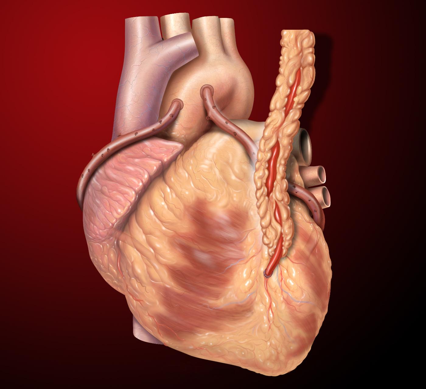 File:Heart saphenous coronary grafts.jpg - Wikimedia Commons
