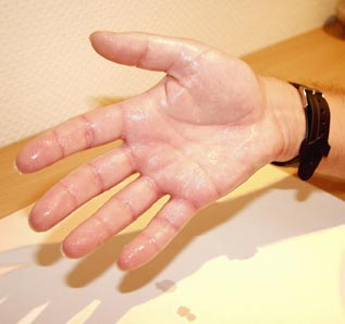 Handinnenseite blauer fleck Lipom: Ursachen,