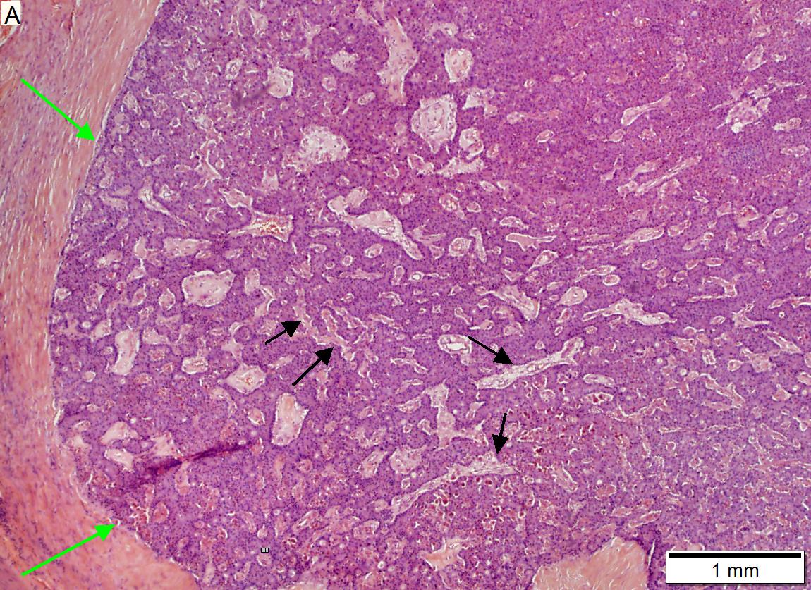 Low grade pancreatic neuroendocrine tumor