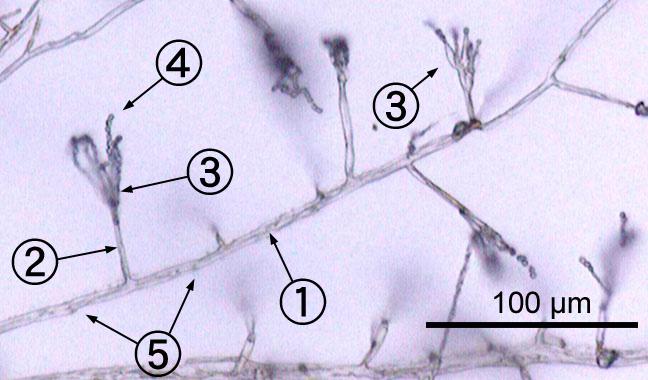 Description Penicillium labeled cropped jpgPenicillium Slide Labeled