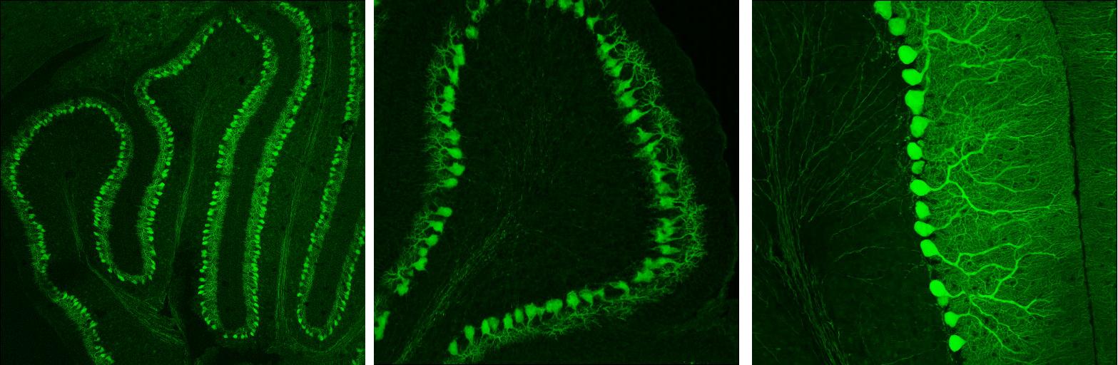 File purkinje neurons in the wikimedia commons - Pure kindje ...