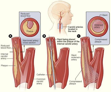 Carotid stenting - Wikipedia