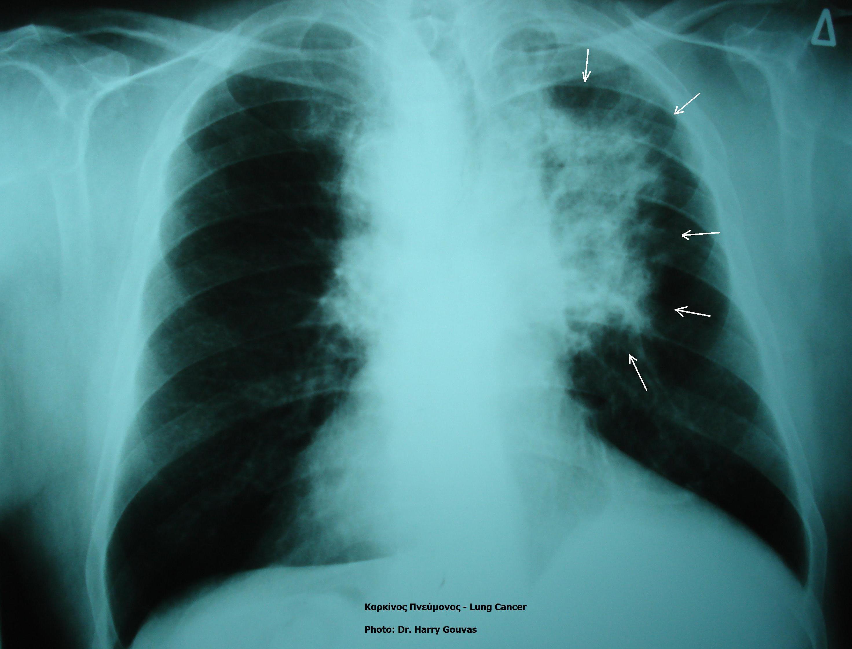 Rak płuc u osób, które nigdy nie paliły. Naukowcy coraz bliżej znalezienia przyczyn choroby