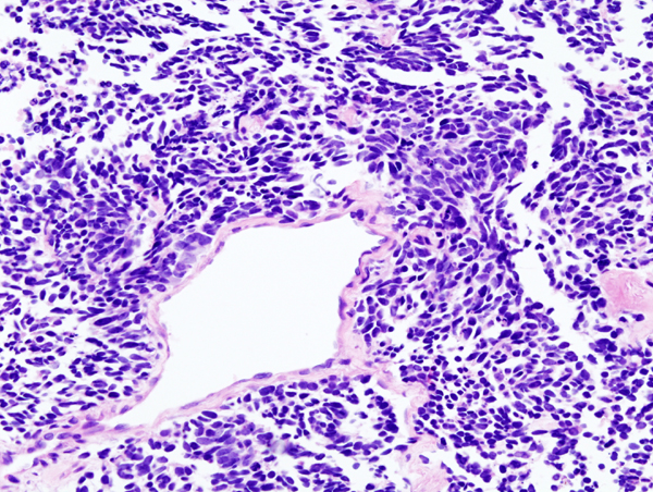 Datei:Lung small cell carcinoma (2) by core needle biopsy.jpg