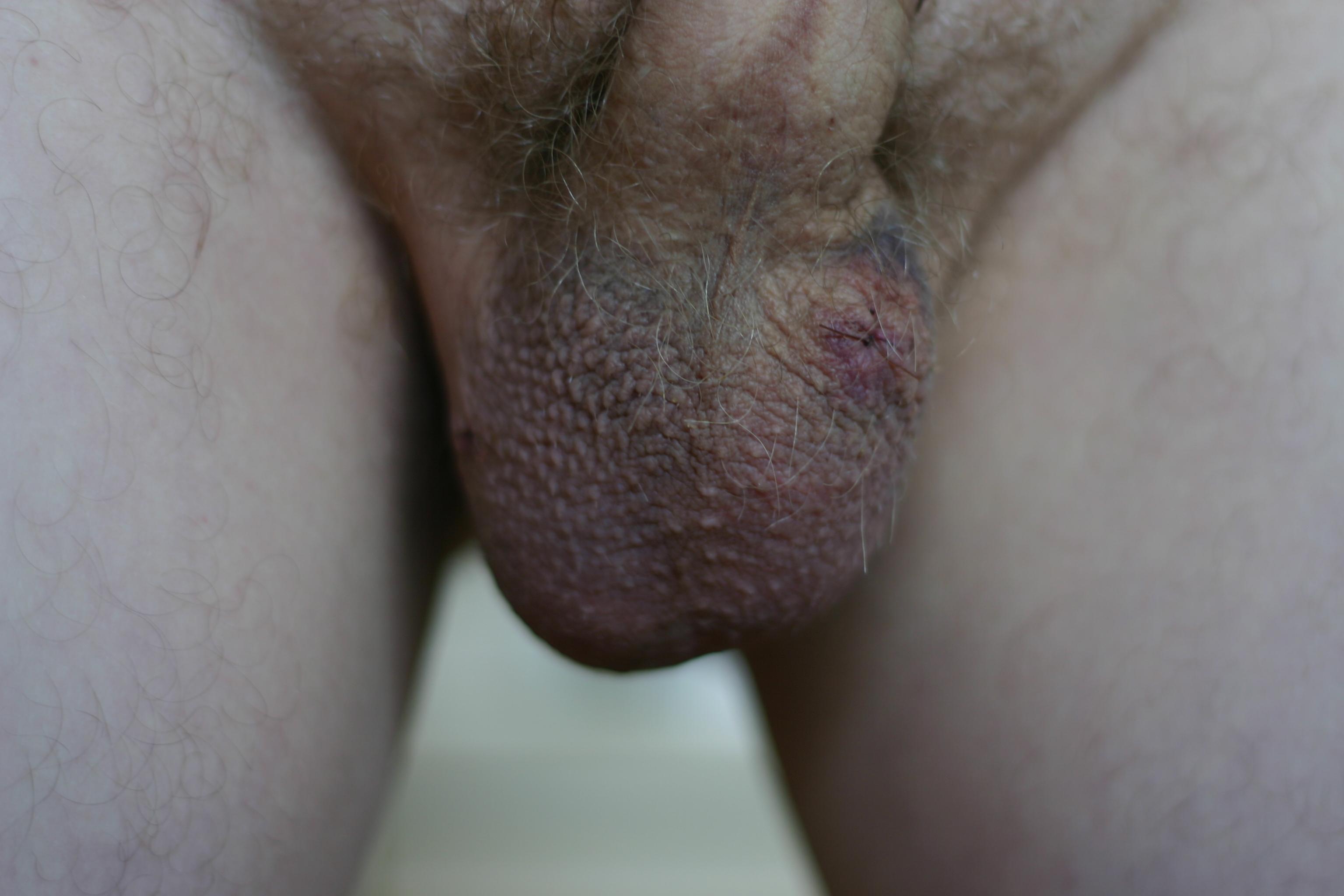 Wouldn't Vasectomy sperm semen New favorite!