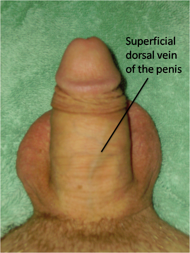 What a man's penis says about his health health essentials
