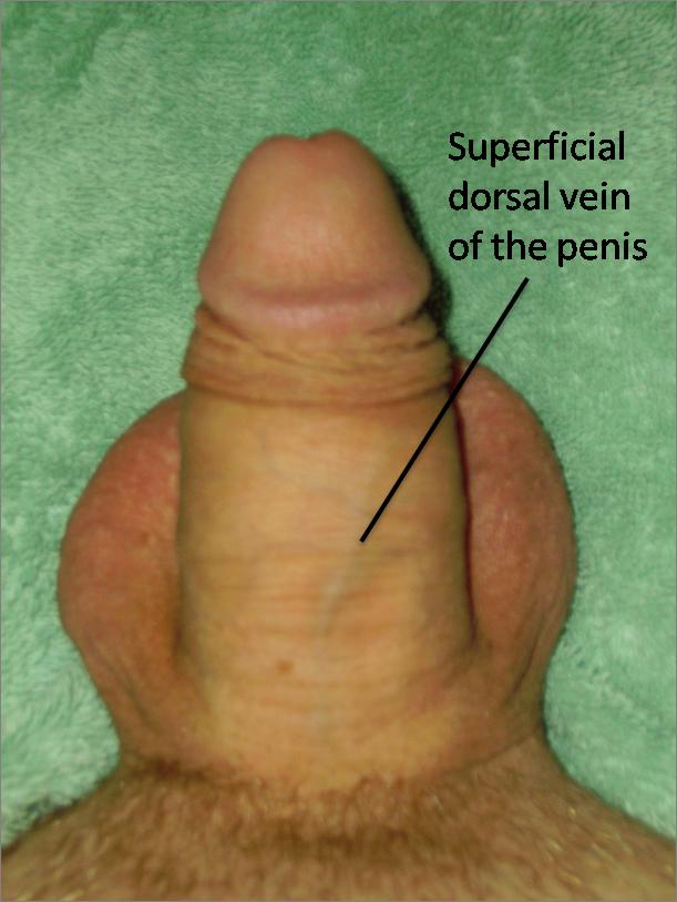 Doral vein cock ring