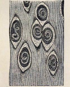 trichinella spiralis history