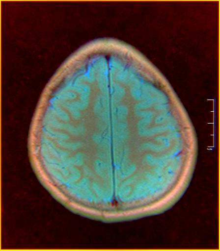 Brain MRI 0015 16.jpg