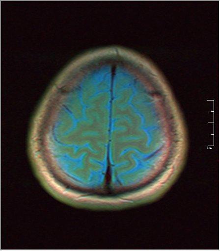 Brain MRI 0081 02.jpg