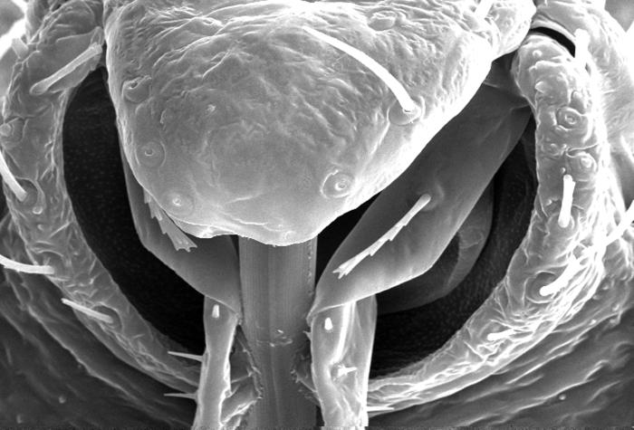 File:Cimex-lectularius--bedbug--mouth.jpg